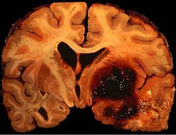 Erkeklerde beyin kanaması riski için kritik dönem 55 yaş sınırı